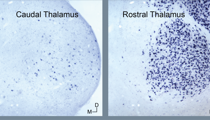 Different glutamate transporter Type 1 gene expression patterns in caudal and rostral thalamus.
